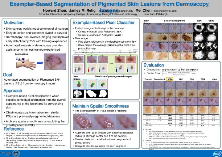 Exemplar based segmentation of pigmented skin lesions from dermoscopy images