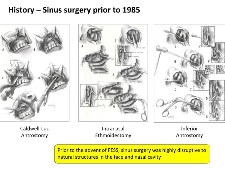 History – Sinus surgery prior to 1985