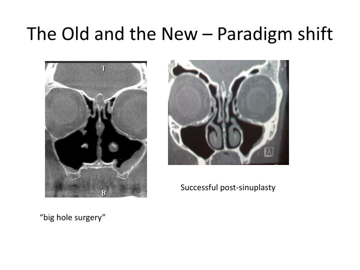 The Old and the New – Paradigm shift