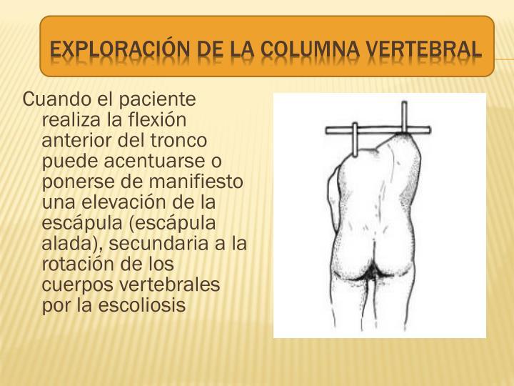 Cuando el paciente realiza la flexión anterior del tronco puede acentuarse o ponerse de manifiesto una elevación de la escápula (escápula alada), secundaria a la rotación de los cuerpos vertebrales por la escoliosis