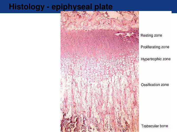 Histology - epiphyseal plate