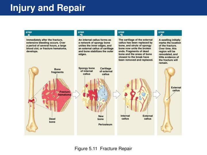 Injury and Repair