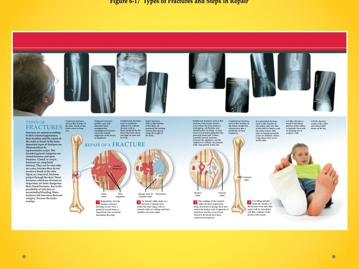 Figure 6-17  Types of Fractures and Steps in Repair