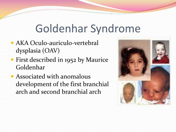 ppt - goldenhar syndrome powerpoint presentation - id:1973903, Skeleton
