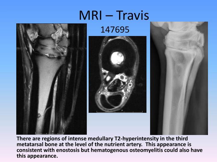 MRI – Travis