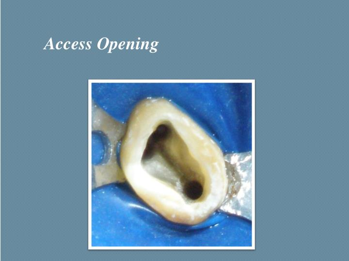 Access Opening