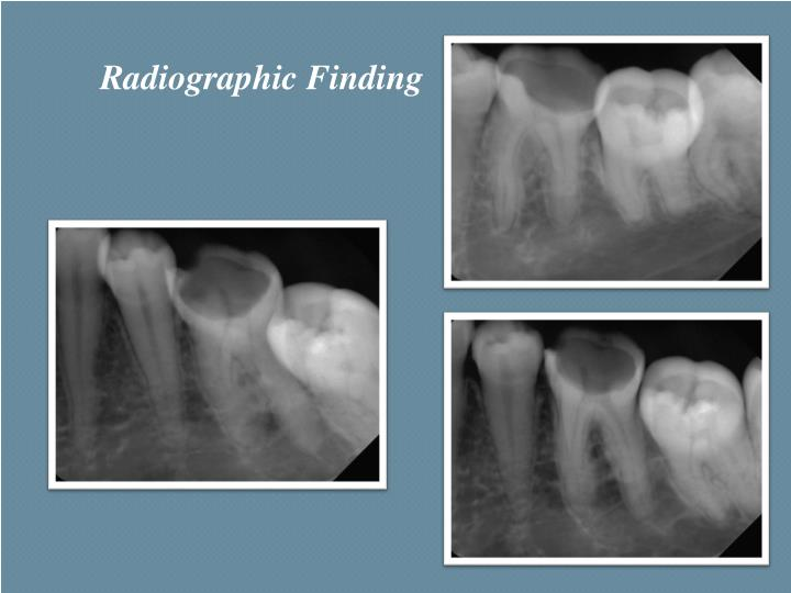 Radiographic Finding