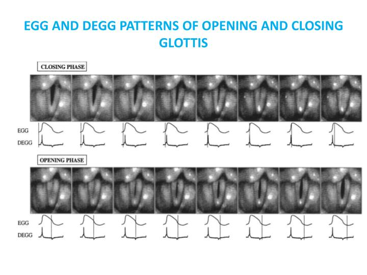 EGG AND DEGG PATTERNS OF OPENING AND CLOSING GLOTTIS