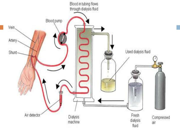 How Dialysis works