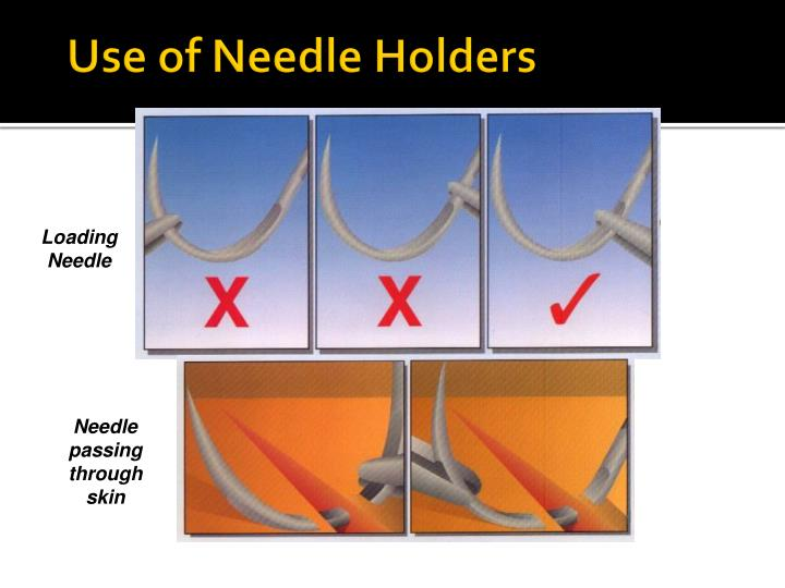 Use of Needle Holders