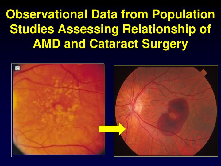 Observational Data from Population Studies Assessing Relationship of AMD and Cataract Surgery