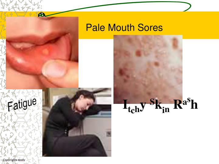 Pale Mouth Sores