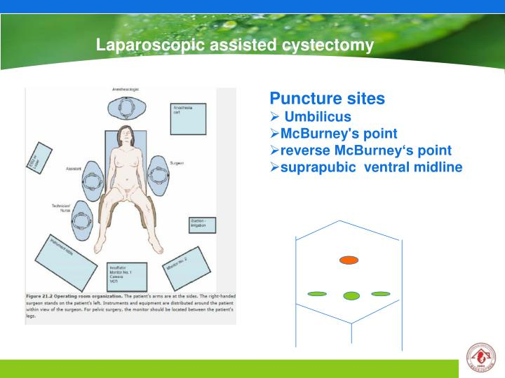 Laparoscopic assisted