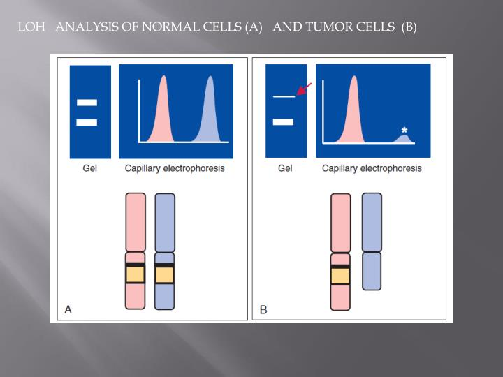 LOH   ANALYSIS OF NORMAL CELLS (A)   AND TUMOR CELLS  (B)