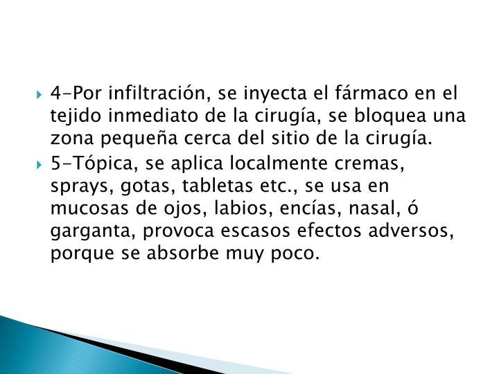 4-Por infiltración, se inyecta el fármaco en el tejido inmediato de la cirugía, se bloquea una zona pequeña cerca del sitio de la cirugía.