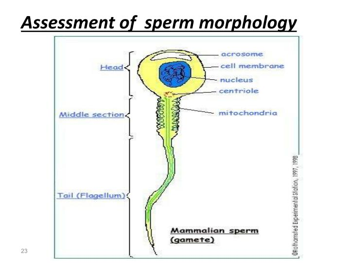 Need causes of poor sperm morphology fucking