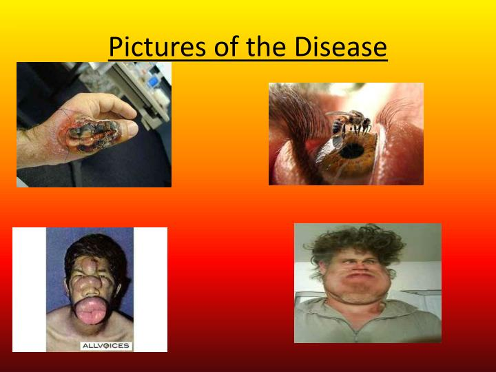Pictures of the Disease
