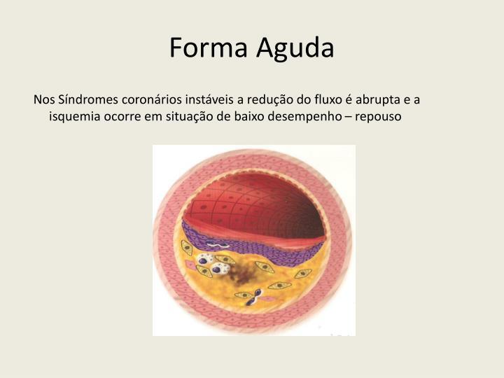 Forma Aguda