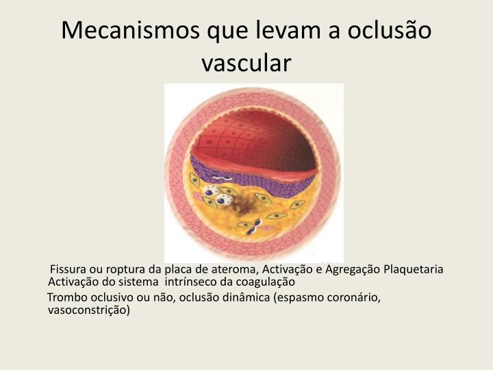 Mecanismos que levam a oclusão vascular
