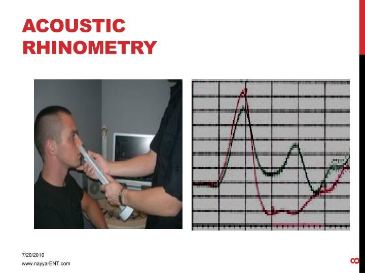 Acoustic rhinometry
