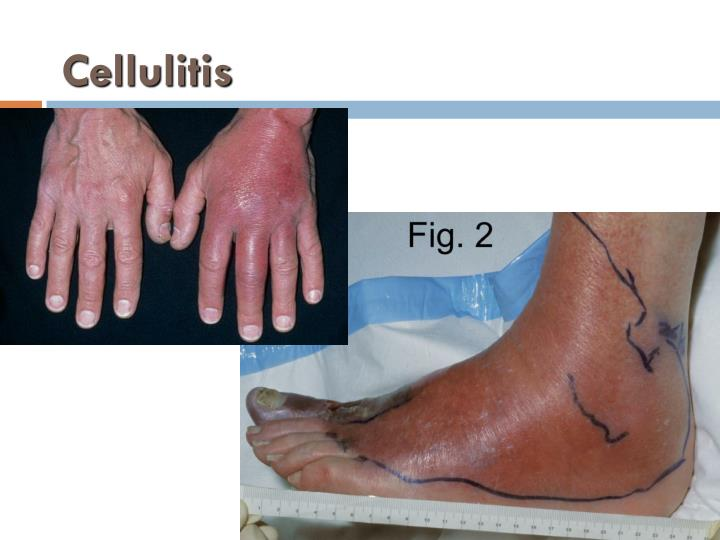 Cellulitis
