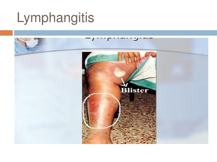 Lymphangitis
