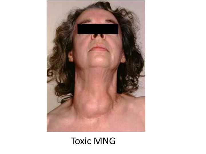 Toxic MNG