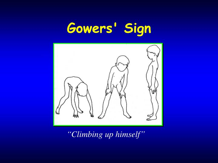 Gowers' Sign