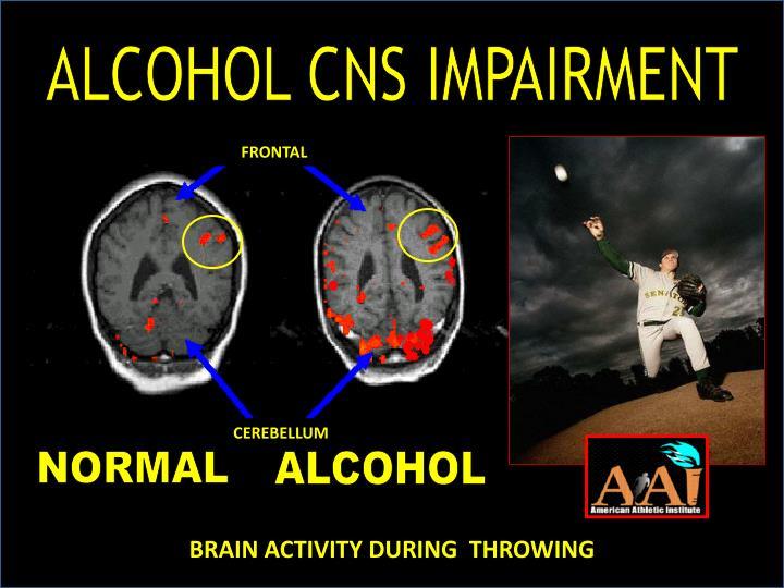 ALCOHOL CNS IMPAIRMENT
