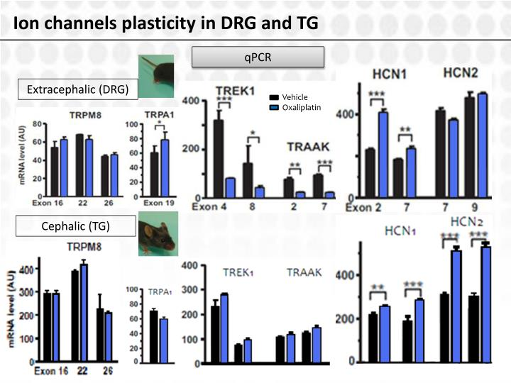Ion channels plasticity in DRG and TG