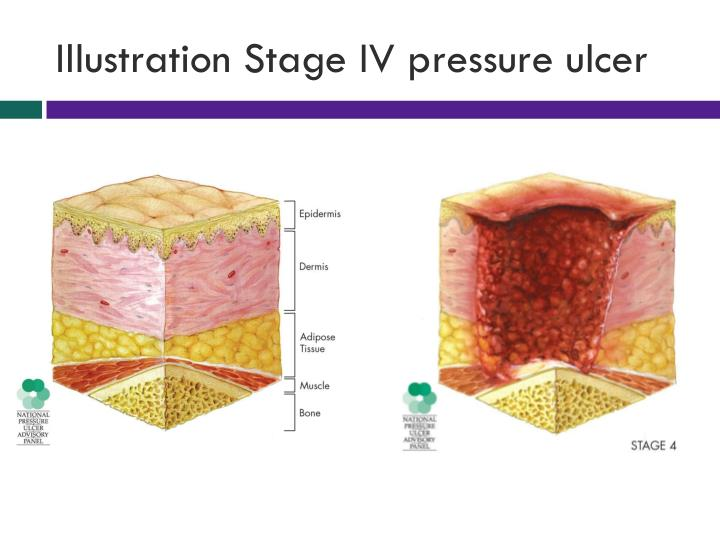 Illustration Stage IV pressure ulcer