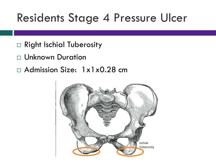 Residents Stage 4 Pressure Ulcer
