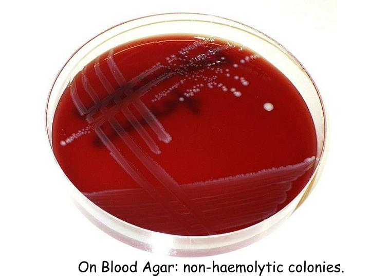 On Blood Agar: non-
