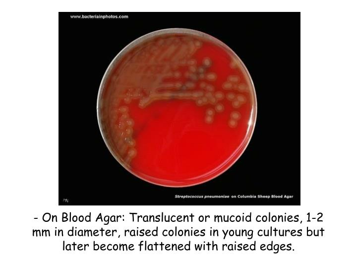 - On Blood Agar: Translucent or