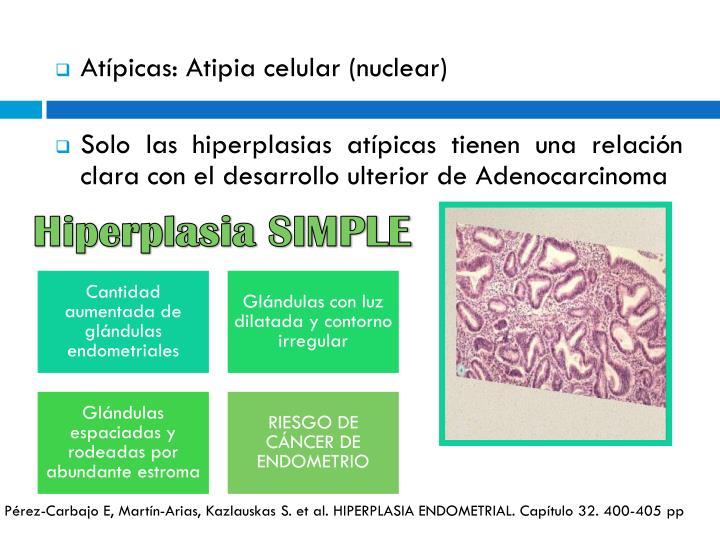 Hiperplasia SIMPLE