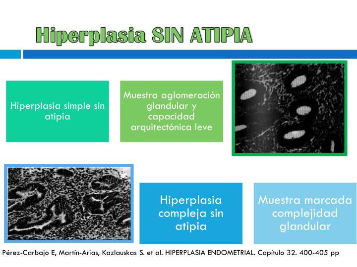 Hiperplasia SIN ATIPIA