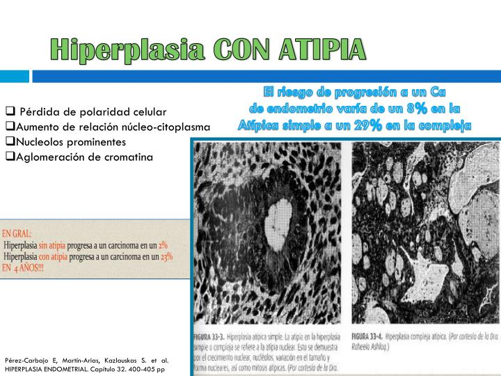 Hiperplasia CON ATIPIA