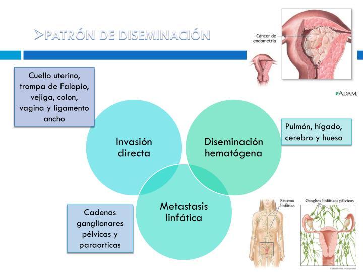PATRÓN DE DISEMINACIÓN
