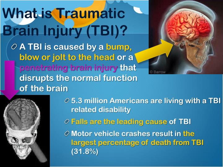 What is Traumatic Brain Injury (TBI)?