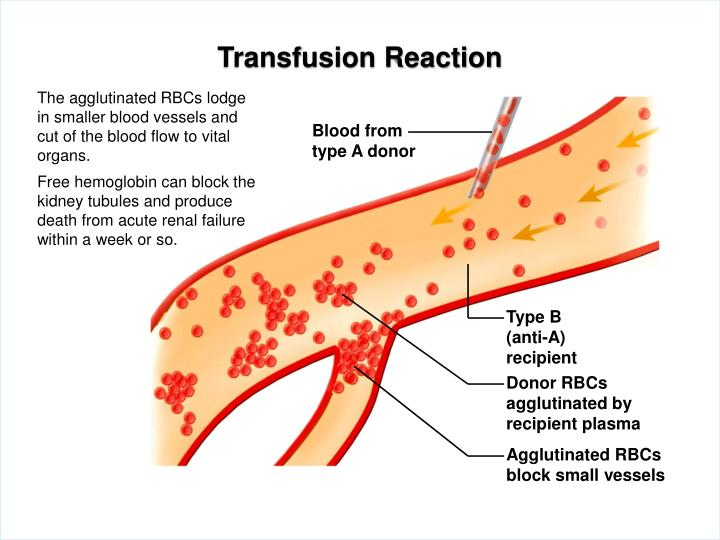 Transfusion Reaction