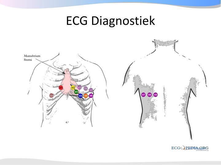 ECG Diagnostiek