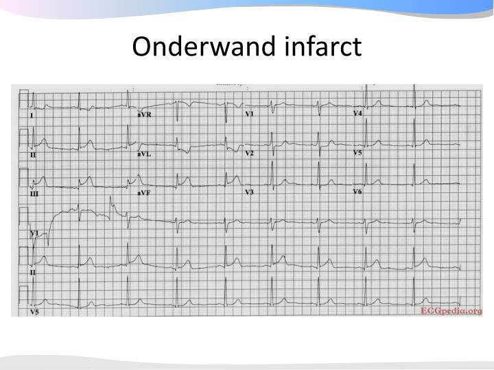 Onderwand infarct