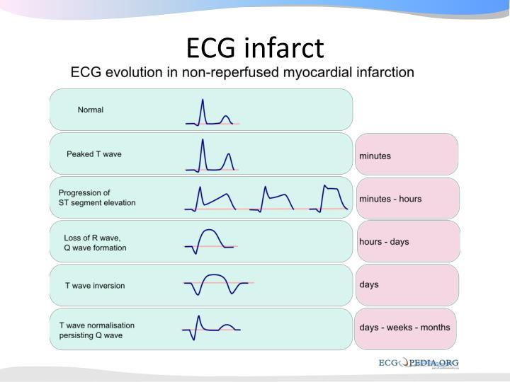 ECG infarct