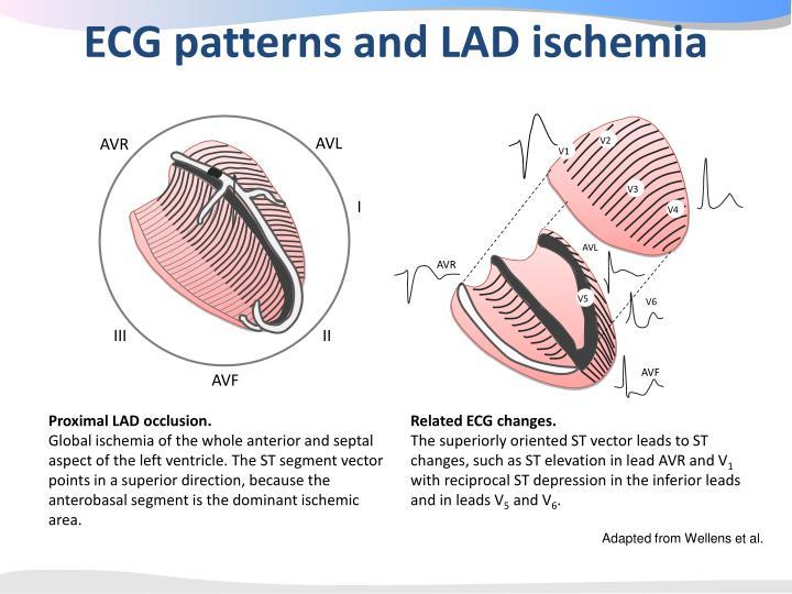 ECG patterns and LAD ischemia