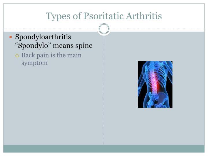 Types of Psoritatic Arthritis