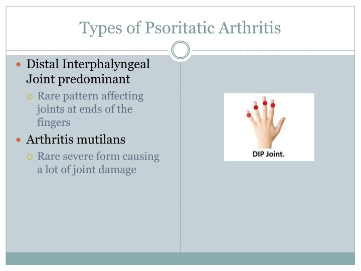 Types of Psoritatic Arthritis
