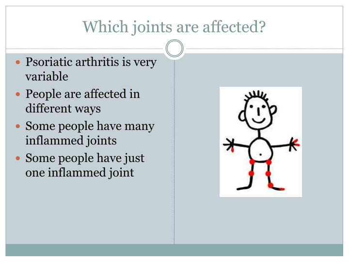 Which joints are affected?