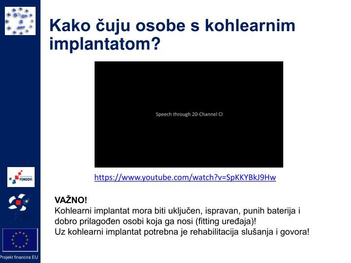 Kako čuju osobe s kohlearnim implantatom?