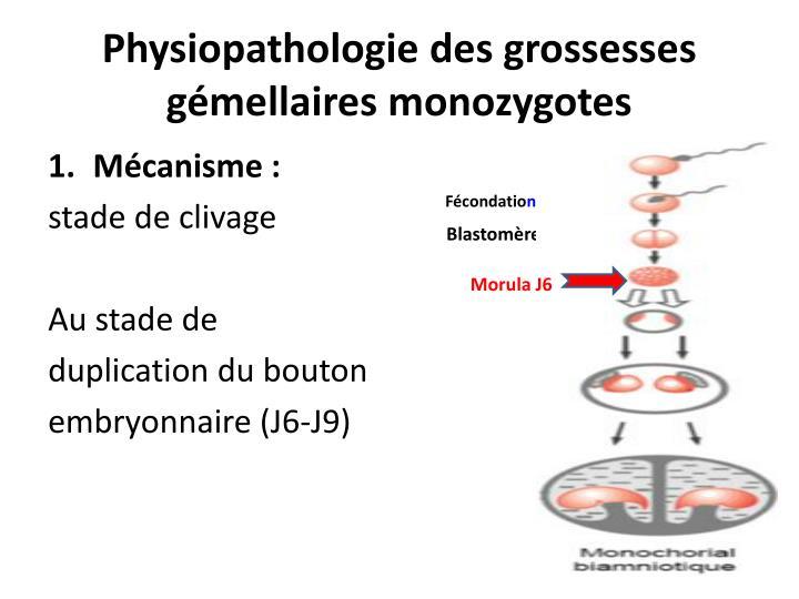 Physiopathologie des grossesses gémellaires monozygotes