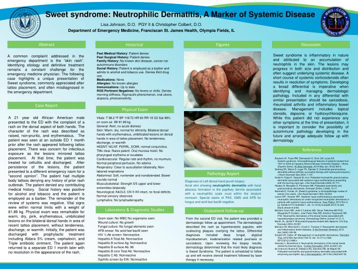 Sweet syndrome: Neutrophilic Dermatitis, A Marker of Systemic Disease